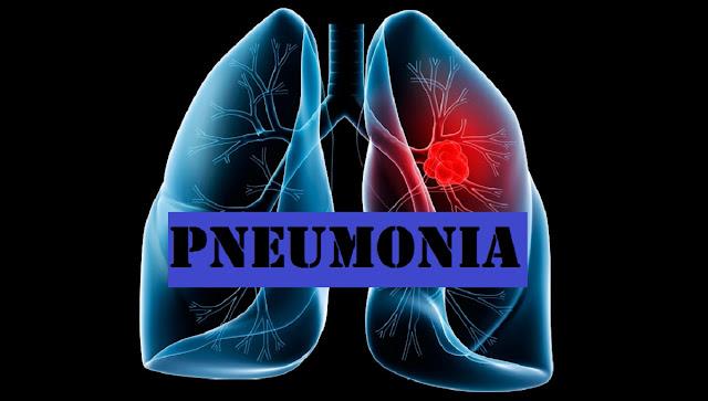 Laporan Pendahuluan Pneumonia