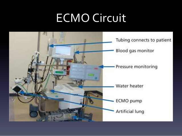 extracorporeal membrane oxygenation ecmo Extracorporeal membrane oxygenation (ecmo) provides prolonged respiratory  and cardiac support to adult patients whose lungs and heart are too diseased or .