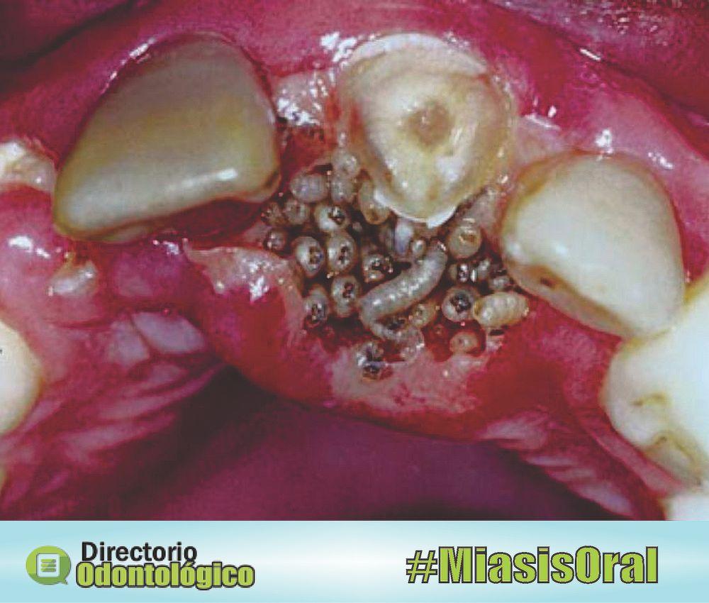 Miasis Oral