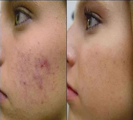 How To Clear Dark Spots On The Face Naturally