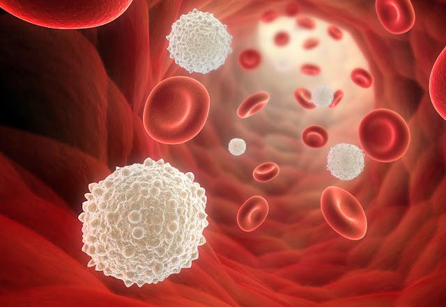 Bahaya Sel Darah Putih Berlebihan