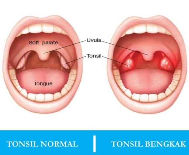 Demam Sebab Bengkak Tonsil