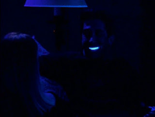 bahaya gigi veneer