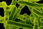 Bacilo de Koch, microorganismo causante de la tuberculosis