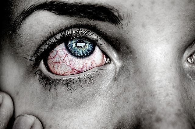5 sinais de problemas de saúde que podem surgir no seu rosto e indicar doenças