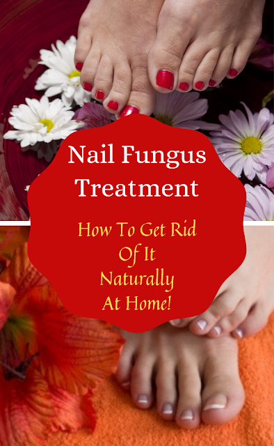 How To Get Rid Of Nail Fungus Naturally At Home