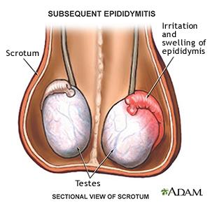 Resultado de imagen para mitos de dolor en los testiculos