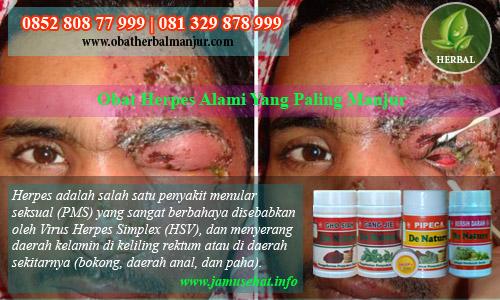obat herpes alami