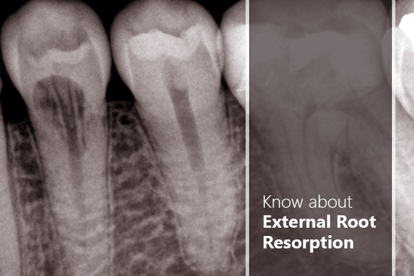 root resorption