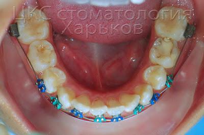 Ранее ортодонтическое лечение, установка брекет системы