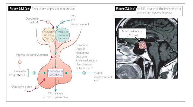 Hyperprolactinemia, Regulation of prolactin secretion, Physiologic hyperprolactinemia, Pharmacologic hyperprolactinemia, Pathologic hyperprolactinemia, Galactorrhea