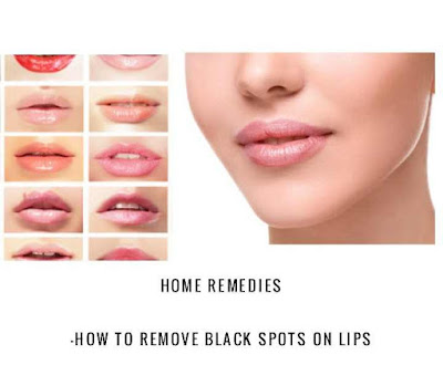 Home Remedies to Get Rid Of Black Spots On Lips