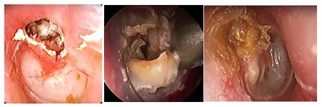 التهاب-الأذن-الوسطى-الصديدي