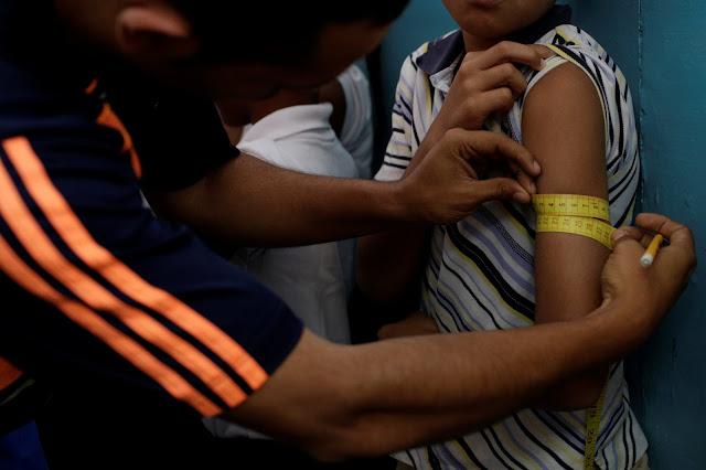 El 60% de niños menores de cinco años presentó desnutrición aguda