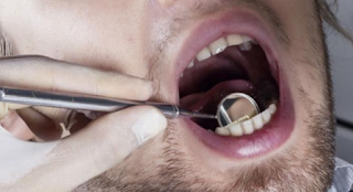 Dentist Horror Stories, mutilating 120 The patient's mouth