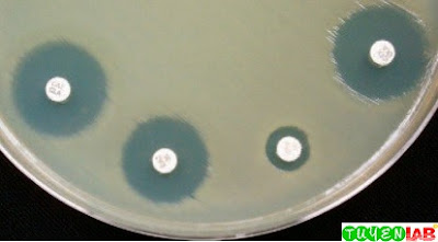 Extended spectrum β-lactamase (ESBL) phenotypic confirmatory testing of Klebsiella pneumoniae.