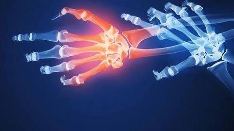 علاج التهاب العظام بالاعشاب الطبية .