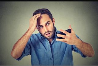 العلامات الأكثر شيوعا وأسباب تساقط الشعر