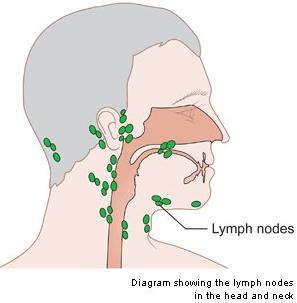 Obat Kanker Kelenjar Getah Bening: Cara mencegah dan ...