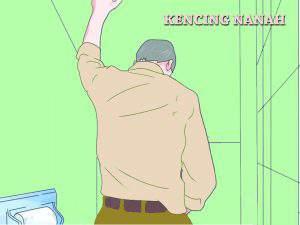 Obat Kencing Nanah Pada Pria