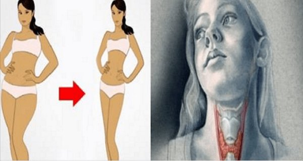 Use This Miraculous Drink To Cure Your Thyroid Gland And Lose Weight Much Faster!