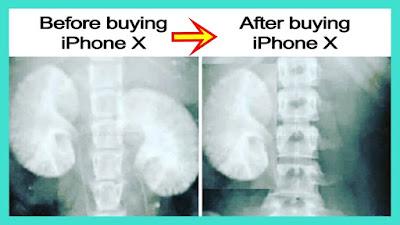 Before and after buying an iPhone X