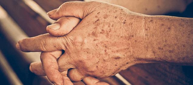 cómo eliminar las manchas de la edad