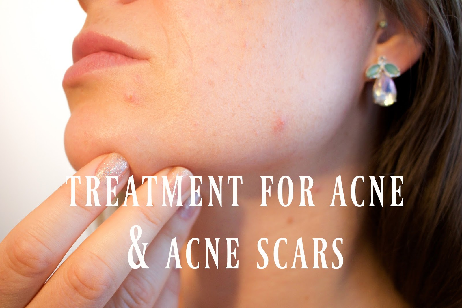 acne scars, acne treatment, laser treatment for acne