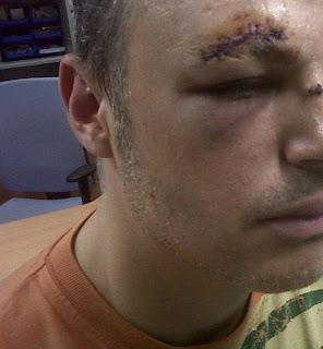 heridas-puc3b1o-americano2.jpg