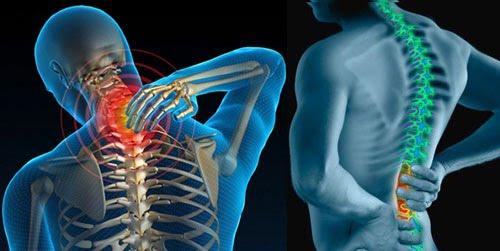Cách chữa bệnh đau cột sống hiệu quả - hình 1