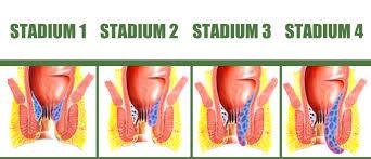 Obat Wasir Stadium Empat