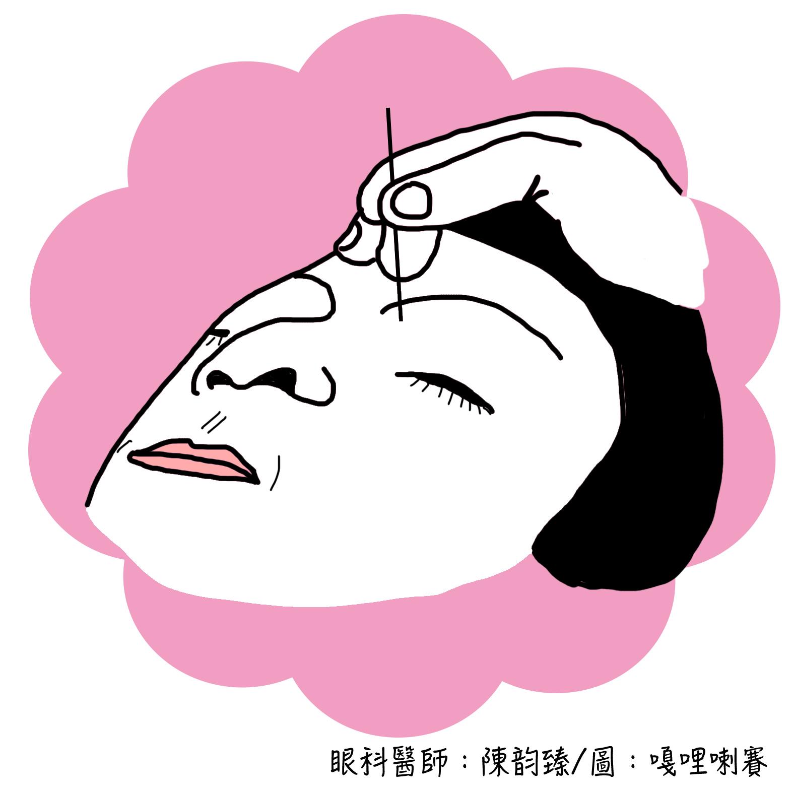 陳韻臻眼科醫師: 搶救乾眼大作戰-缺水篇