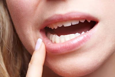 Basics of Receding Gums Cure That You Will be Able to Learn From Starting Today