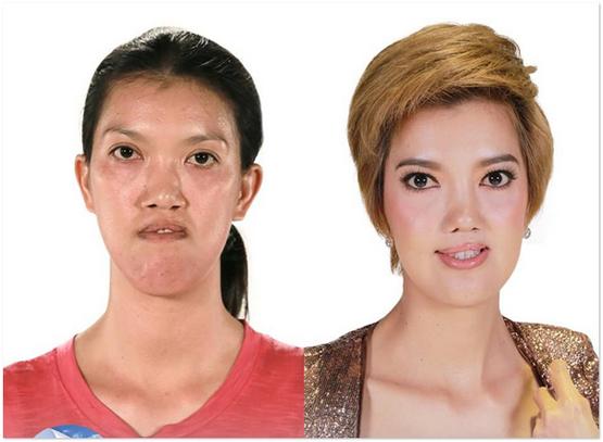 17 Foto Menakjubkan Wanita Thai Sebelum Dan Selepas Pembedahan Plastik