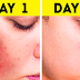Natural Home Treatment That Will Guaranteed Help You To Remove Dark Spots