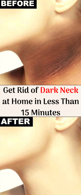 Get Rid of Dark Neck at Home in Less Than 15 Minutes