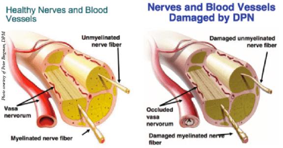 kerosakan saraf kerana diabetis punca kebas