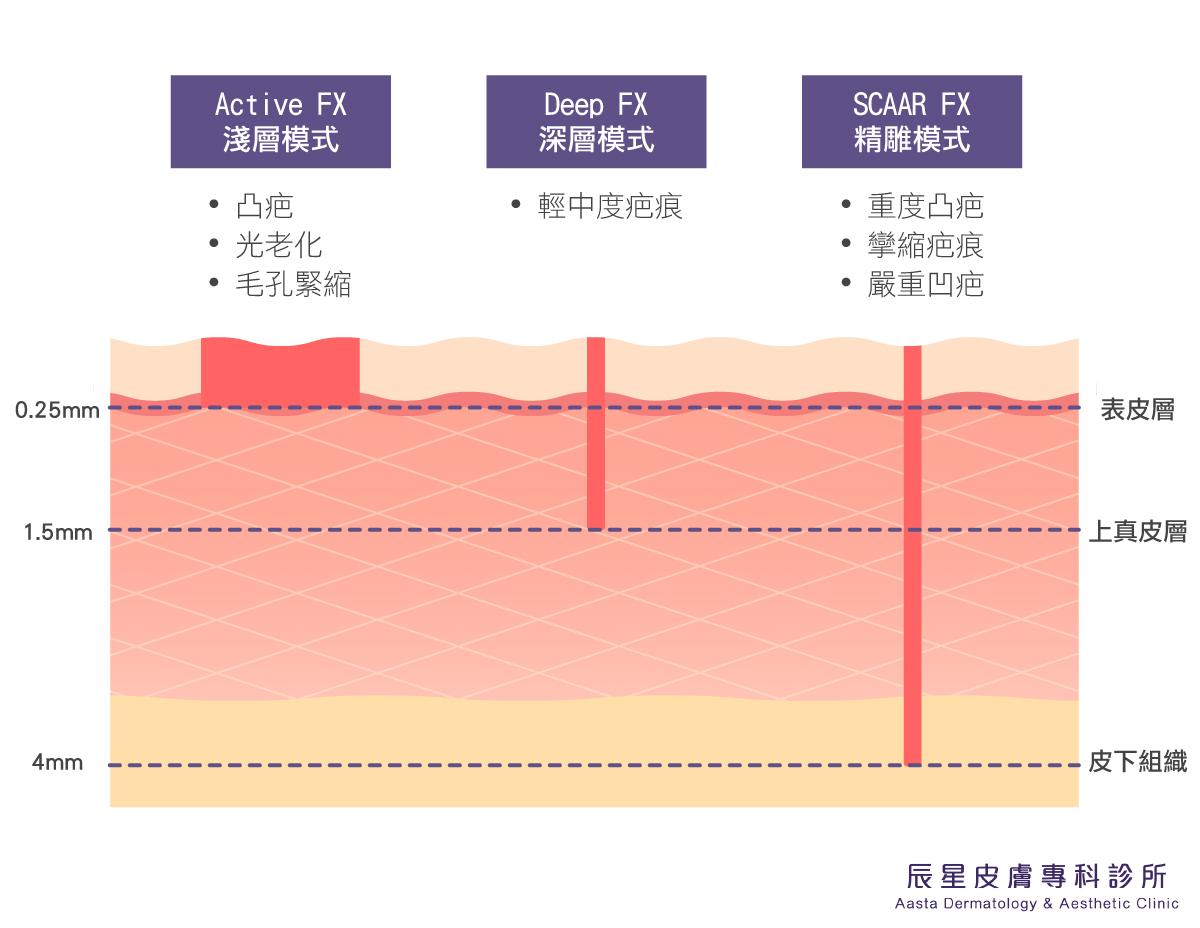 UP雷射有三種模式:淺層膜式、深層模式與精雕模式,能夠根據局部嚴重程度的不同搭配治療,優質化膚質,改變原本凹凸不平、粗糙的肌膚表面。