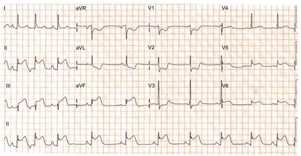 Durante o atendimento, foi realizado eletrocardiograma, cujo resultado está reproduzido a seguir