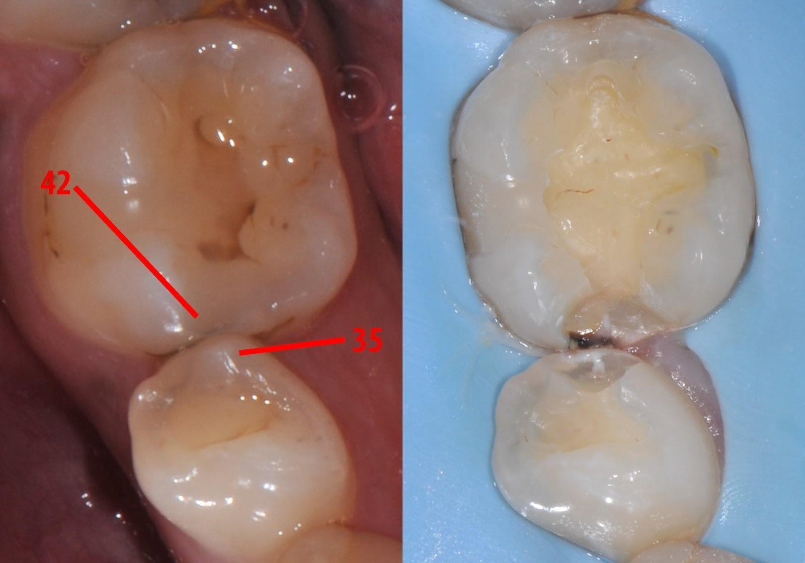 Lighthouse Dental Centre Blog: Canary Dental Laser - The ...