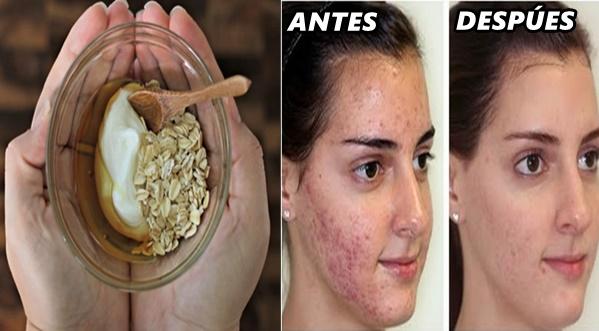 Mascarilla de perejil para el acne