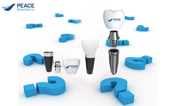 Phương pháp chăm sóc răng sau cấy ghép răng impant