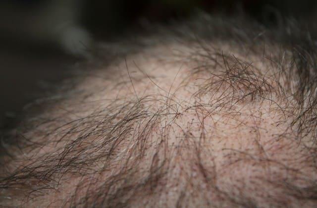 Cara Mengatasi Rambut Rontok Secara Alami - Gunakan Bahan-Bahan Ini, Rambut Semakin Kuat dan Lebat