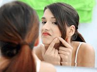 Cara Menghilangkan  Noda Flek Hitam di Wajah