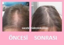 saç mezoterapisi öncesi ve sonrası 16