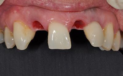 Mất răng số 2 ảnh hưởng rất nhiều tới chức năng toàn hàm