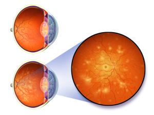 Hay muchas razones por las que nos solemos ir al oftalmólogo cdfc76a5beac