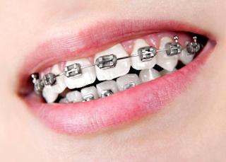 Cara Merawat Gigi Behel Agar Tetap Sehat