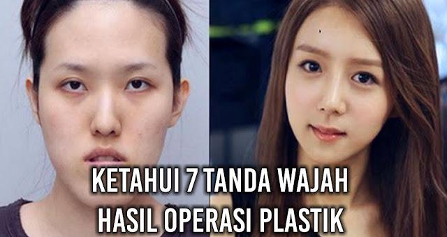 Ketahui 7 Tanda Wajah hasil Operasi Plastik