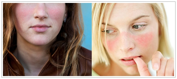 Cara Mengatasi Penyakit Lupus Secara Alami Paling Ampuh